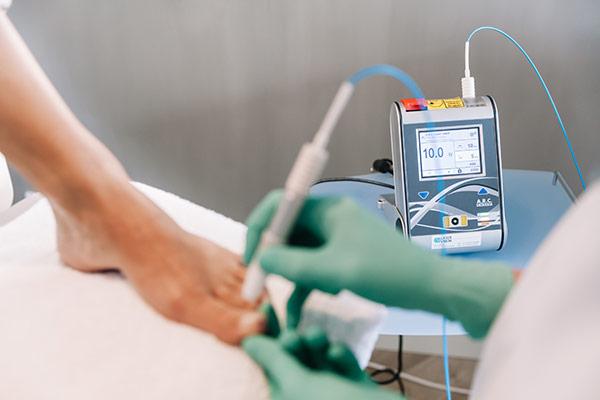 behandelingkeuze-laser-1